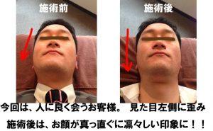 small-face 小顔矯正・曲り(鼻・顎・アシンメトリー)の矯正。板橋区本蓮沼駅20秒