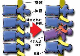 sebone_yugami4 sebone_yugami4